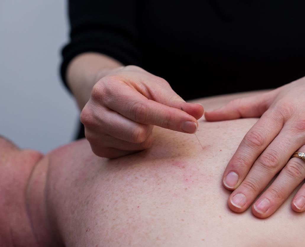 Intramuscular Stimulation (IMS)